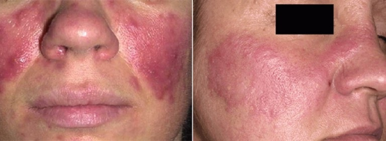 Демодекоз или укусы подкожных лицевых клещей